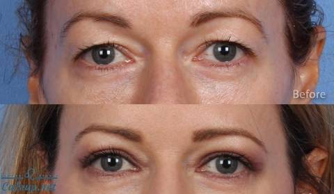 Hooded Eyes - Eyelid Surgery Cost and Financing