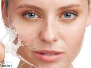 Which treatment for imperfect skin?