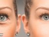 How to Get Rid of Wrinkles On The Face Naturally